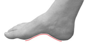 INSOLES FOR HIGH ARCH SUPPORT